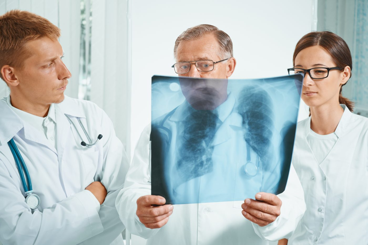 Interstitial Lung Disease Associated with Greater Risk of Lung Cancer in Scleroderma, Study Reports