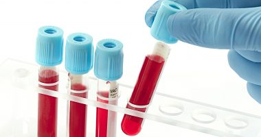 PAH risk and biomarkers