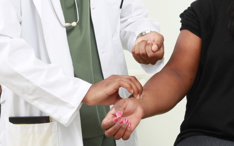 Study of scleroderma and race