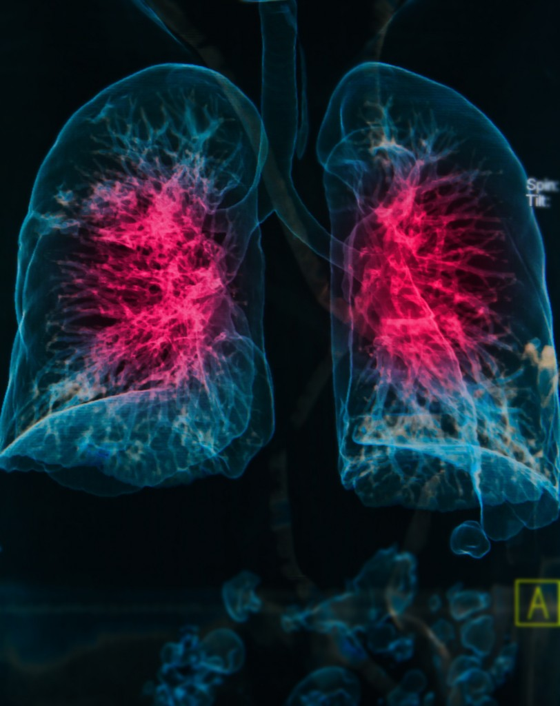 Scleroderma and interstitial lung disease
