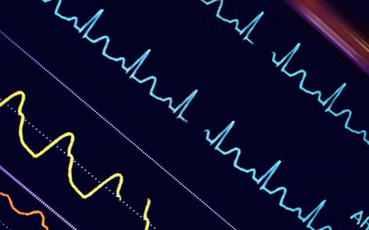 Monitor may prevent death in scleroderma heart disease