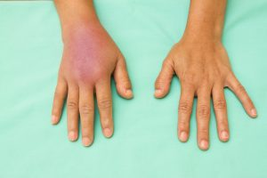 Resunab, Potential Scleroderma Treatment, Shows Ability to Stop Inflammation in Early Clinical Trial