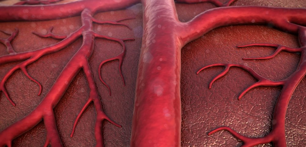 PAH Medications, Tracleer and Opsumit, Seen to Block Fibrosis in Systemic Sclerosis in Early Study