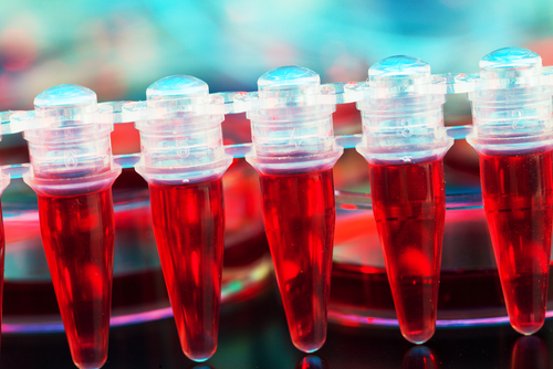 Blood Levels of CD163 Protein May Be a Biomarker to Detect Systemic Sclerosis, Study Shows