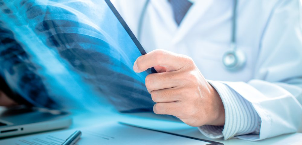 Shortcomings Seen in Way Scleroderma Patients Grouped to Predict Outcomes