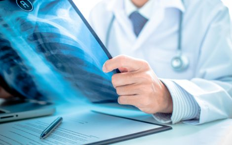 Clinical Signs of Interstitial Lung Disease in Systemic Sclerosis Patients Identified, Study Reports