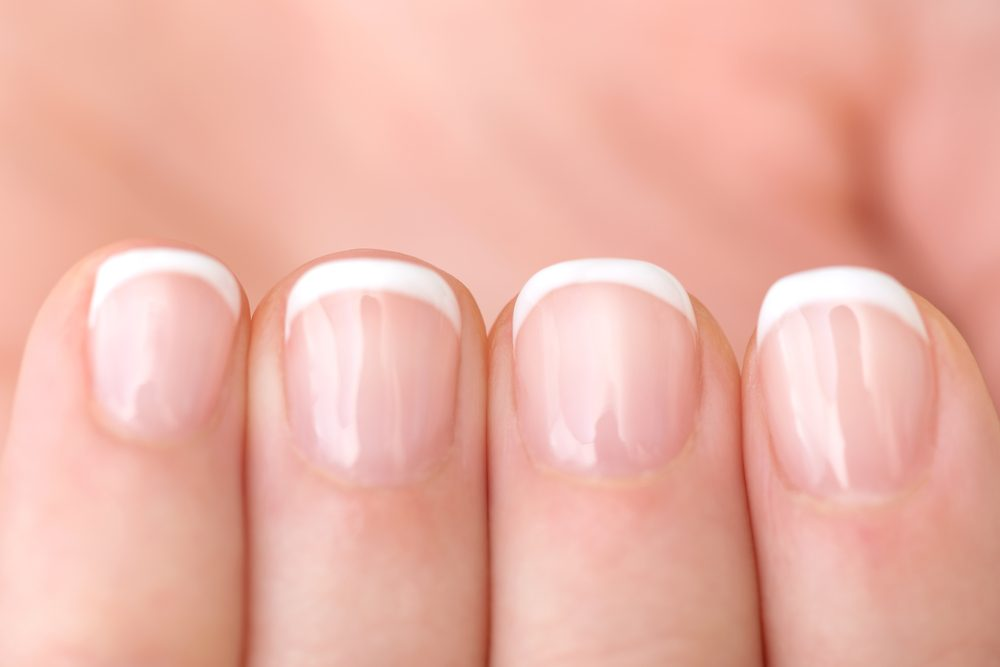 Severe Scleroderma Patients Often Have Fingernail