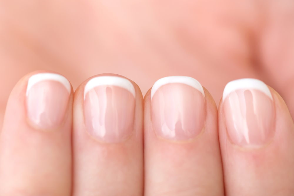 Severe Scleroderma Patients Often Have Fingernail Abnormalities ...