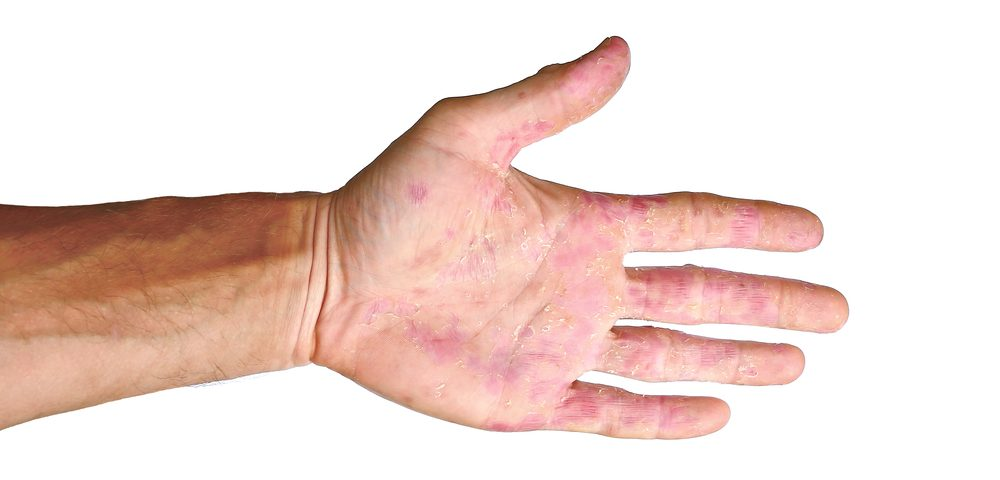 Both Fingertip and Extensor Scleroderma Digital Ulcers Show Improved Blood Flow After Vessel Dilation