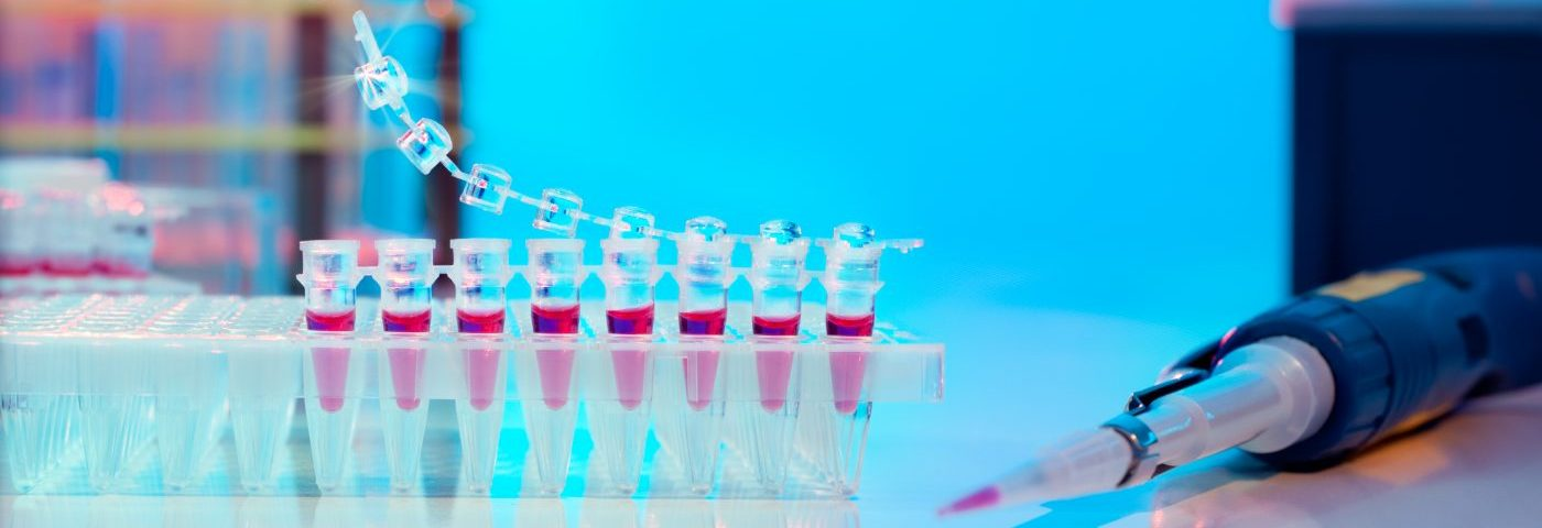 SSc Patients with PAH Show High Levels of Adipsin in the Blood, Study Reports