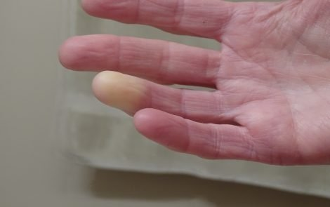 Combined Imaging Approach Can Help Diagnose Scleroderma Earlier, Study Indicates