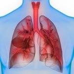 Pulmonary hypertension and SSc