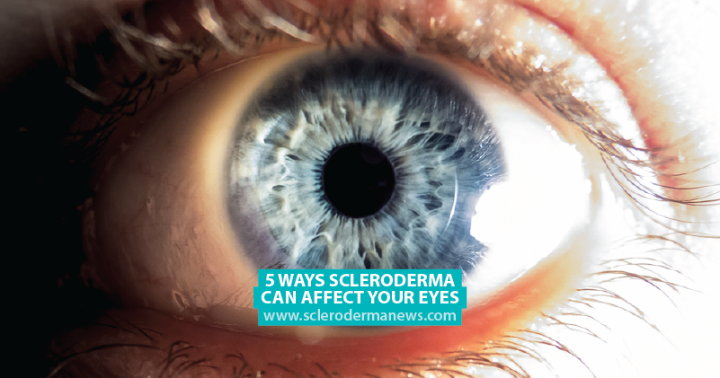 5 Ways Scleroderma Can Affect Your Eyes - Scleroderma News