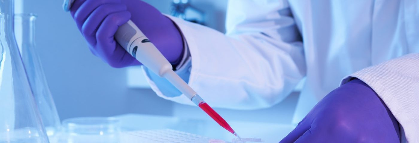 New Blood Test Measures Scleroderma Biomarker Linked to Gastrointestinal Issues and Pulmonary Hypertension