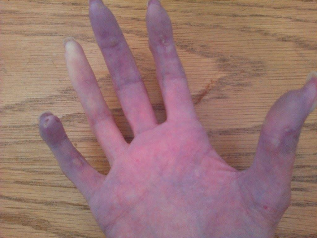 Localized scleroderma