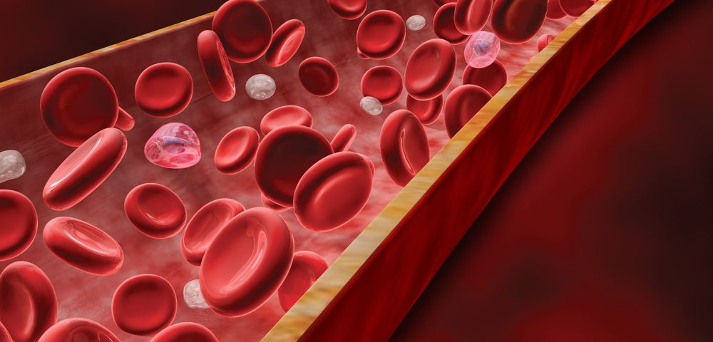 HMGB1 Protein May Drive Blood Vessel, Tissue Damage in Scleroderma, Study Suggests