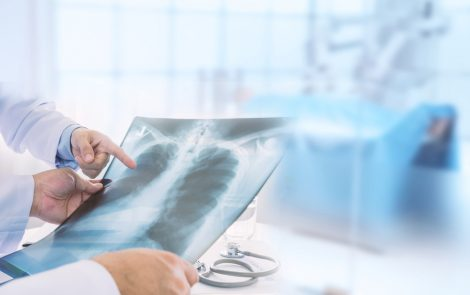 Lung Transplants in Scleroderma Patients As Safe, Effective As in Other Lung Disease Patients, Study Shows