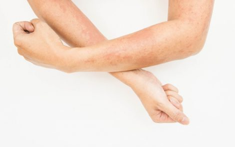 High Levels of IL-6 Correlate with More Severe Skin Disease in SSc, Study Shows