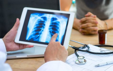 Lenabasum Eases Pulmonary Decline in dcSSc Patients on Long-term Immunosuppressants, Trial Finds