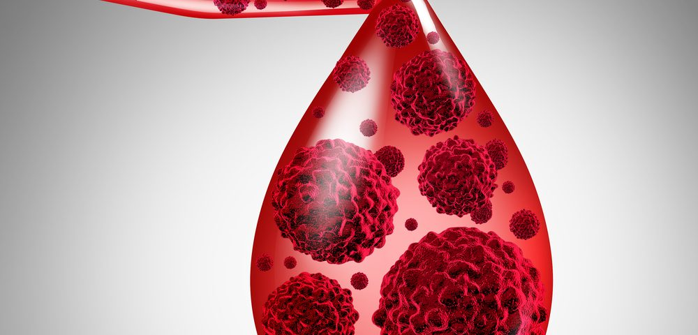 High Blood Viscosity Can Help Identify SSc Patients at Risk of PAH, Study Suggests