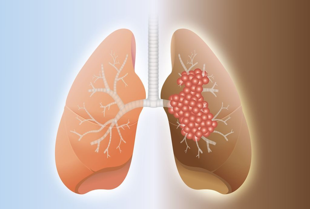 small airways and lung health