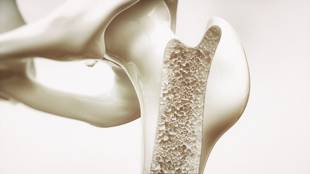 osteoporosis and osteopenia