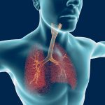 Actemra and lung health