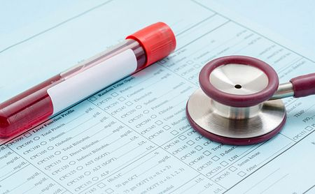 FLC levels in urine and blood