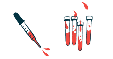 blood analysis of immune signaling proteins/Scleroderma News/vials and syringe of blood illustration