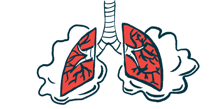 shortened survival found with pulmonary hypertension/Scleroderma News/lungs illustration